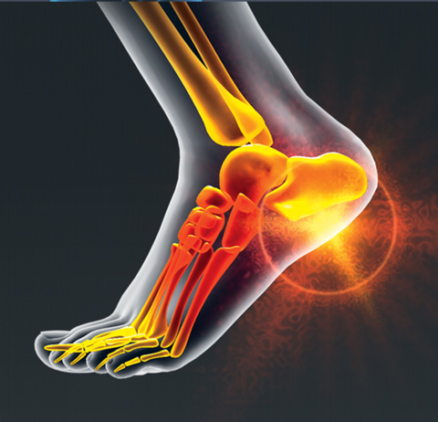 Dr. Scholl's Pain Relief For Plantar