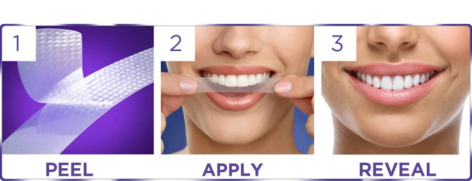 Crest 3d White Whitestrips Glamorous White Teeth Whitening Kit 28